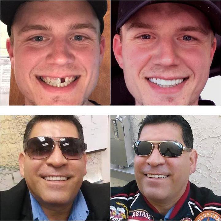 Instawhite snap on smile deal builder snap on smile
