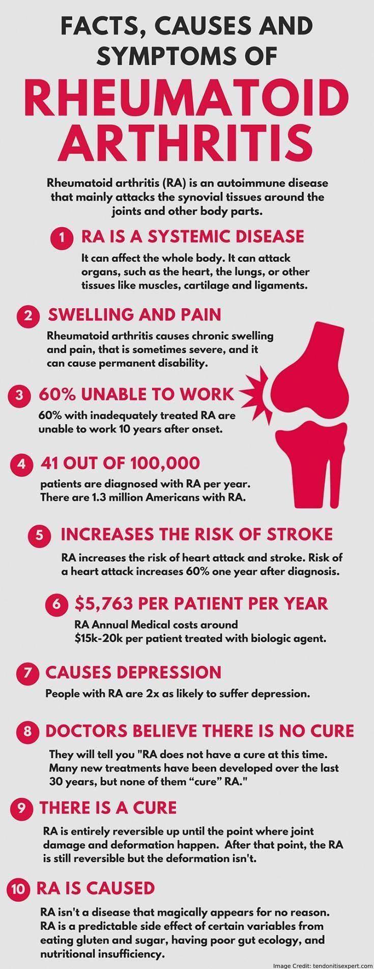 bf5f1f42fbed015f5df9610623b03901 - How Long Does It Take To Get Over Reactive Arthritis