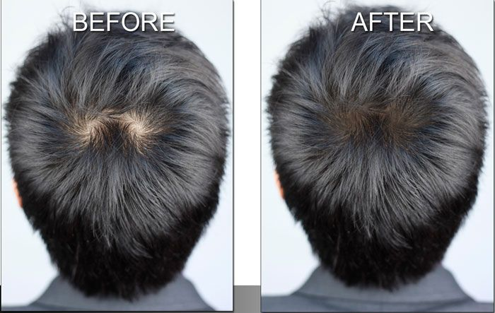 Scalp Shading by MicroArt makeup is a great solution for men and ...