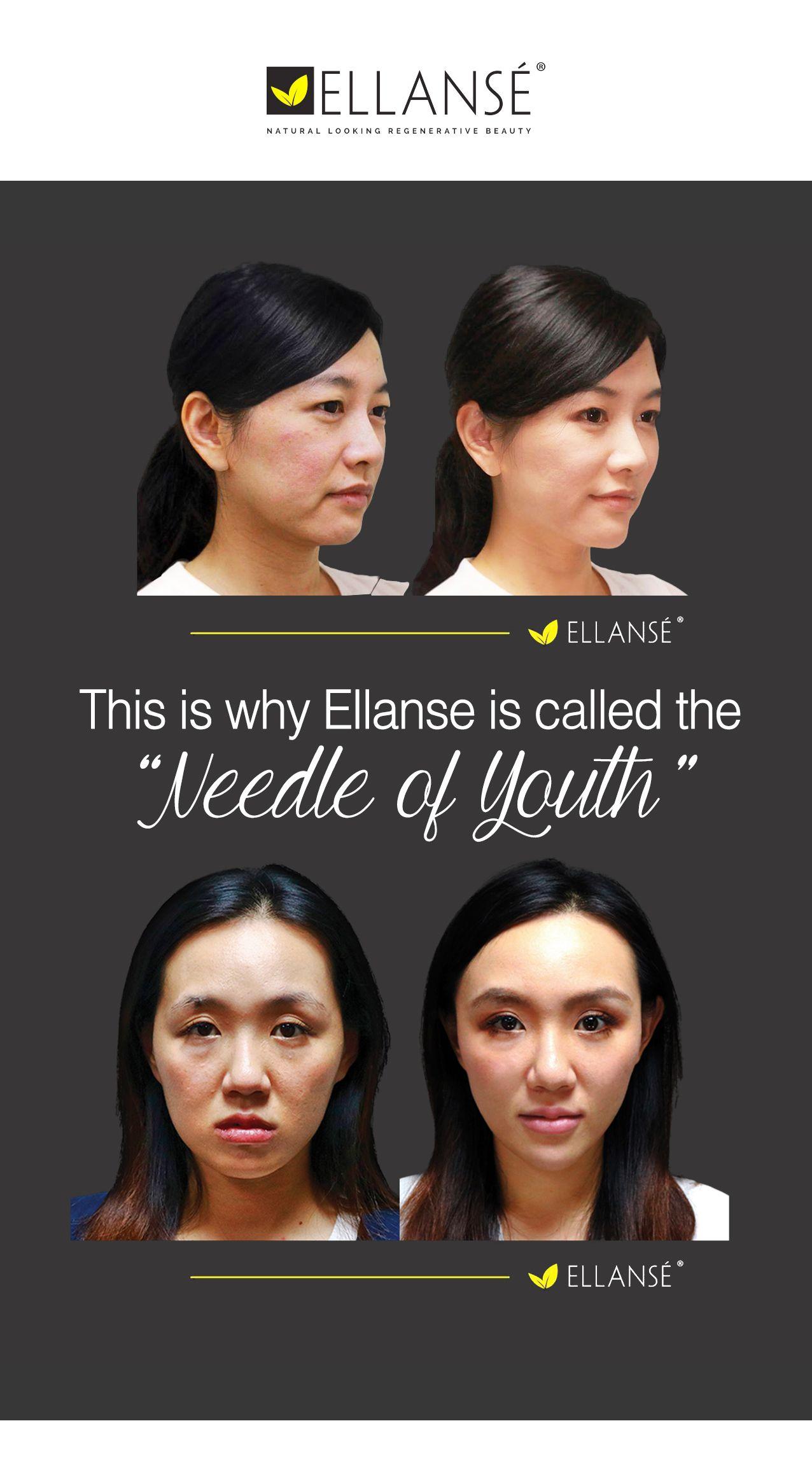 Ellanse is a unique dermal filler containing collagen