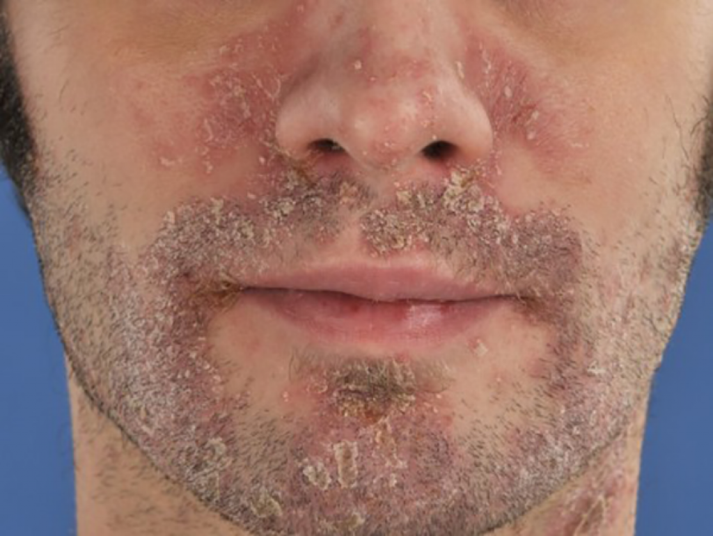 cream for psoriasis on face