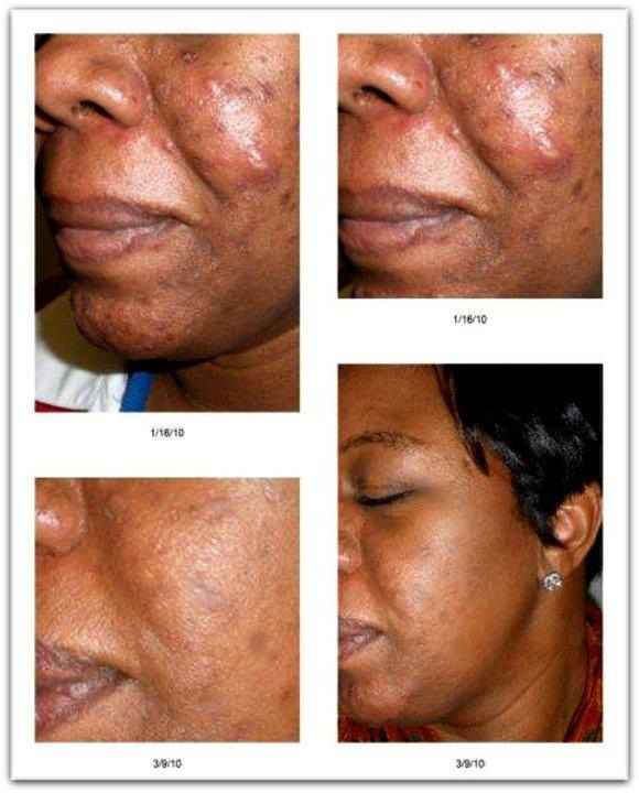 Rodan Fields Home Rodan And Fields Exposed Skin Care Post Acne Marks