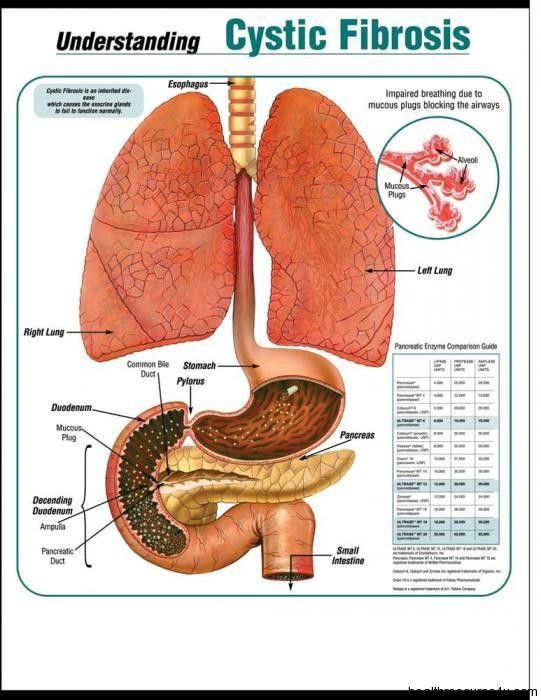 Cystic Fibrosis Causes Symptoms Testing And Treatment