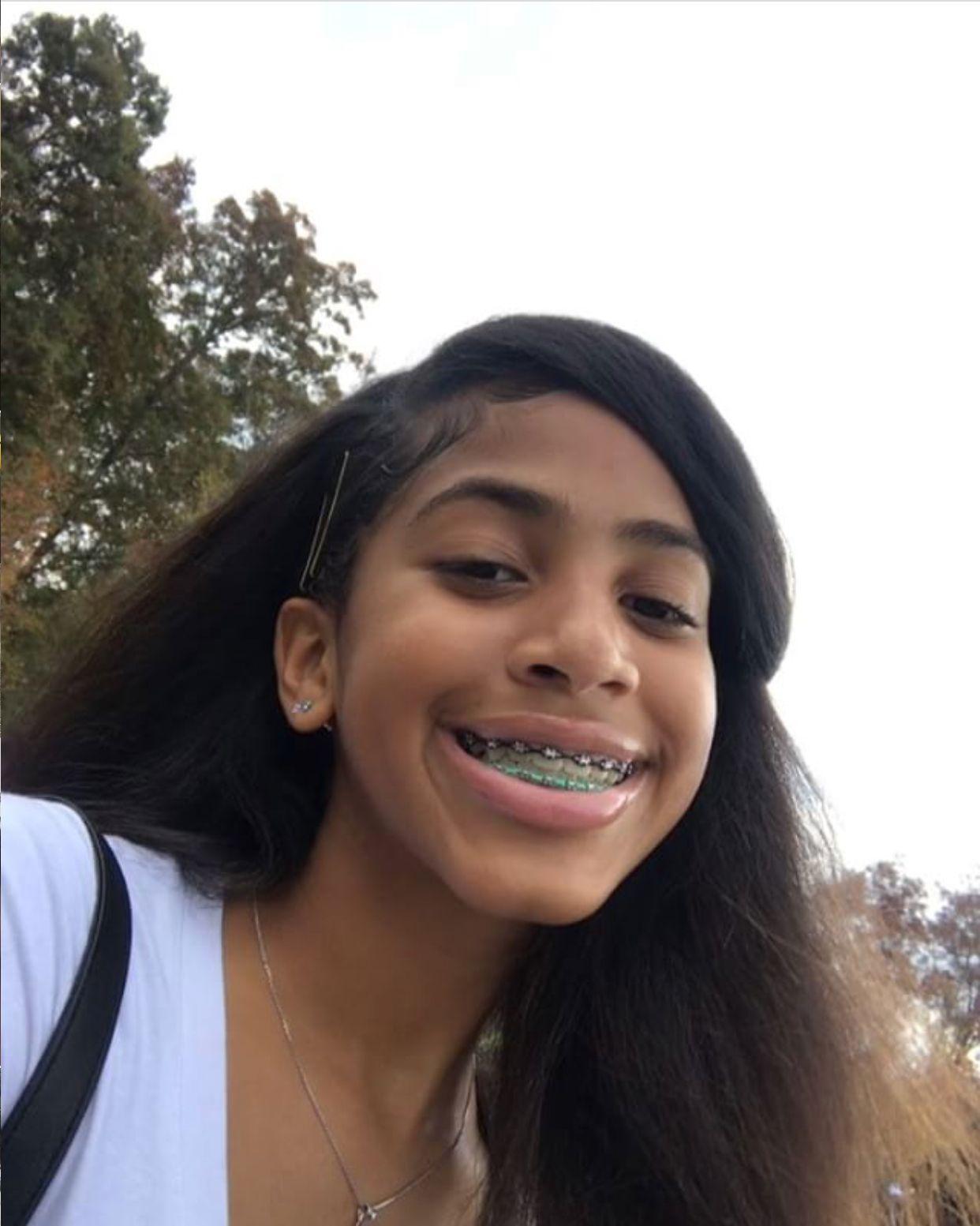 Pin by D💛 on BRACE〰️FACE   Teeth braces, Braces girls ...
