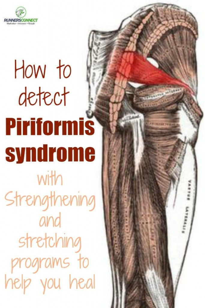 Everything You Need to Know About Piriformis Syndrome | Anatomy ...