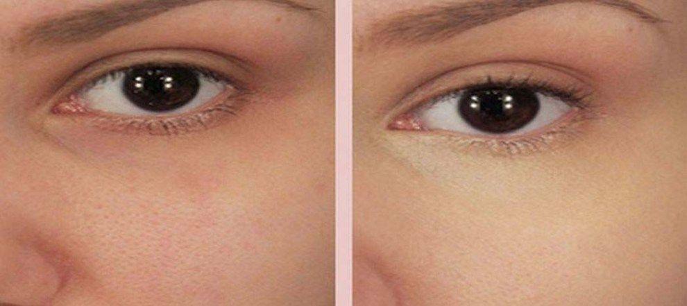 Aprende todos los tips de como puedes usar el bicarbonato de sodio para la belleza y la salud.