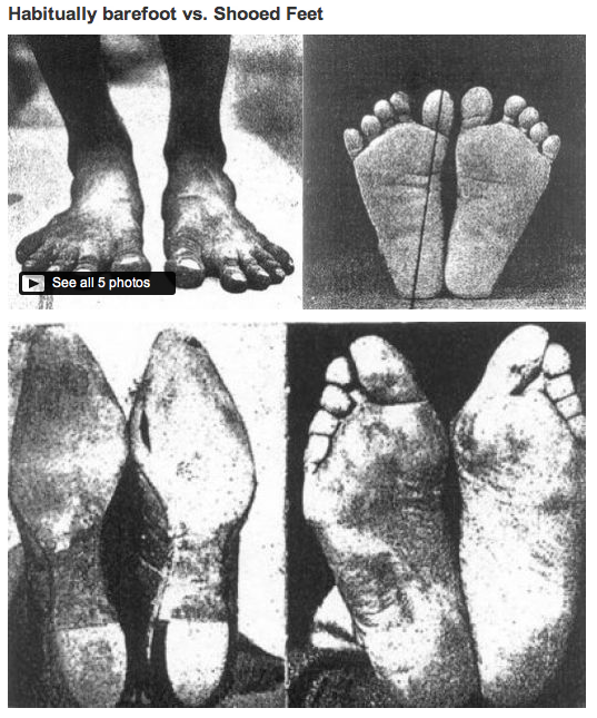 These pics make me want to get some reflexology done barefoot barefootminimal running incentive habitually barefoot vs shod feet our feet actually wither and mold to the shape of our shoes if malvernweather Image collections