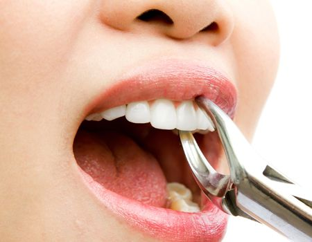 Possible Reasons For A Tooth Extraction Possible Reasons For A
