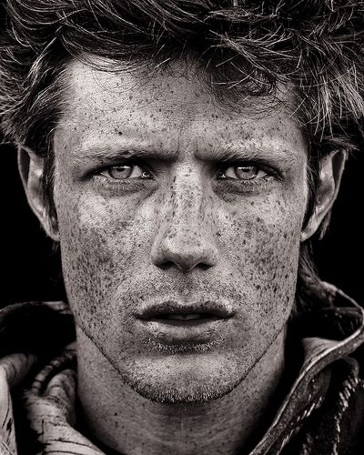 Freckles. Fuzz. Details. B and w.