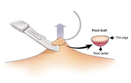 Skills Laboratory Wound Repair Techniques Pinch Punch Grafts Pele