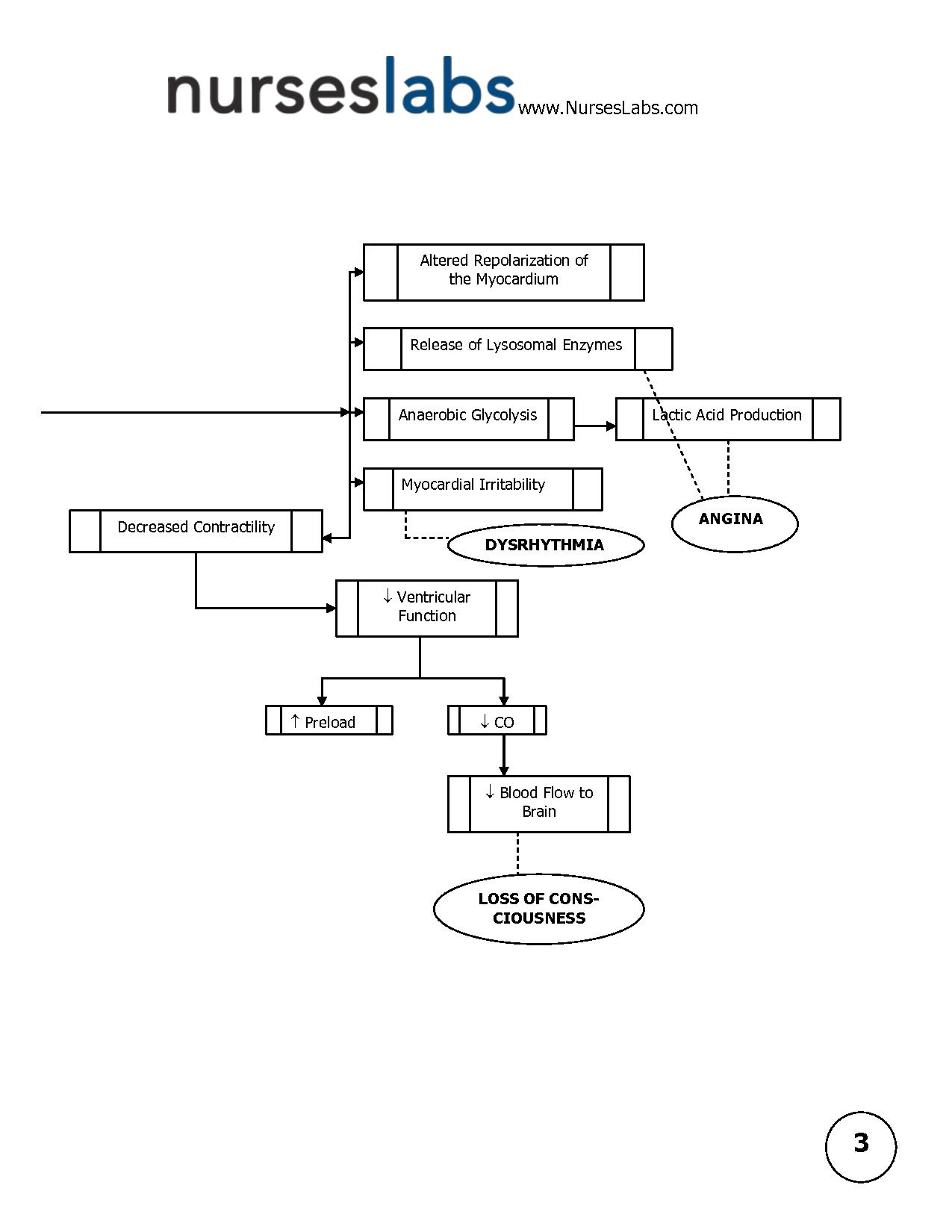 pathophysiology charts | Myocardial Infarction Pathophysiology ...