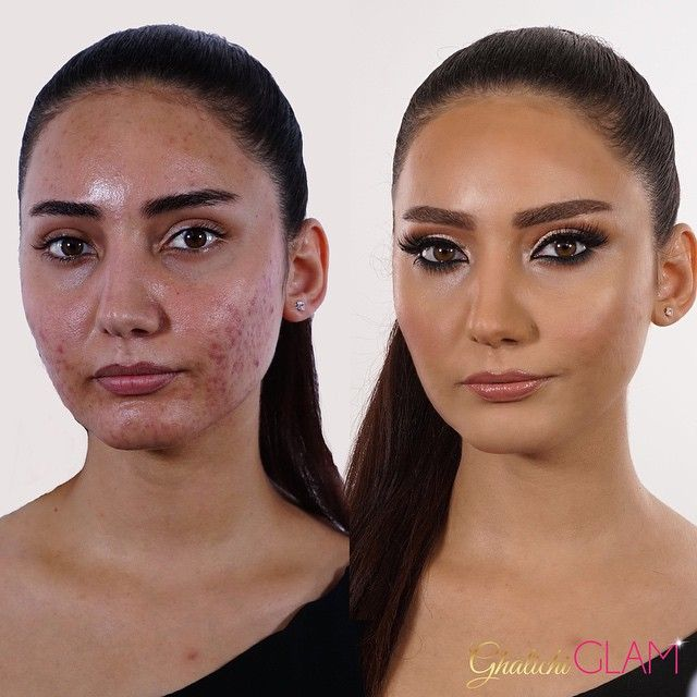 If you missed our acne skin makeup tutorial taught by allenfared if you missed our acne skin makeup tutorial taught by allenfared live the class ccuart Image collections