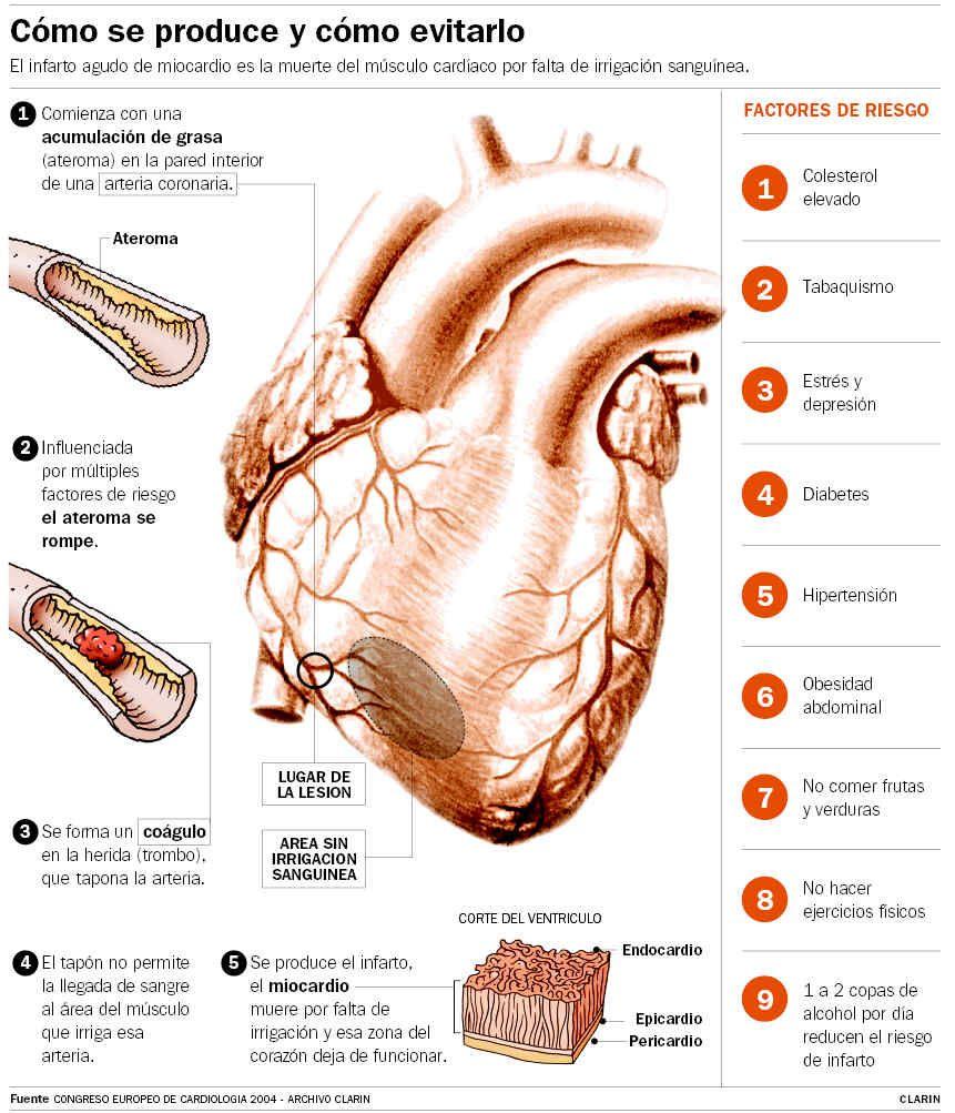 Se define infarto agudo de miocardio (IAM) como: © Hallazgo en la ...