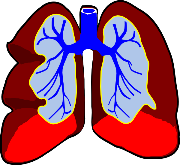 Cartoon Doctors Utensils Cartoon Lungs Clip Art Cancer