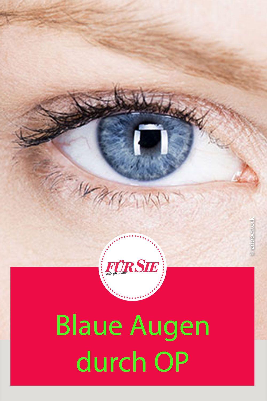 Beauty: Augenfarbe ändern mit neuer OP-Methode in 5  Augen