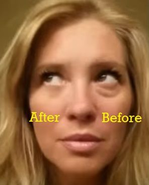 Are you suffering from embarrassing eye bags and winkles? Discover how you can instantly remove your ugly eye bags and wrinkles without painful needles.  Watch the result after the one minute mark now!  http://philipmok.biz/p-rew