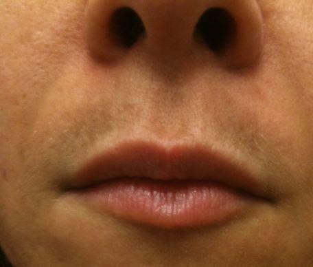 Dark Upper Lip Causes Of Dark Skin On Upper Lip Shadow Line