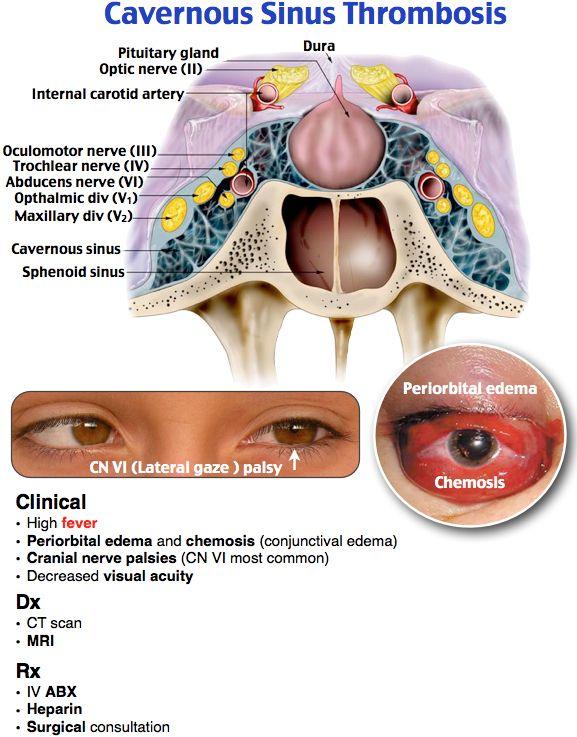 Cavernous Sinus Thrombosis S Aureus Fever Periorbital Edema