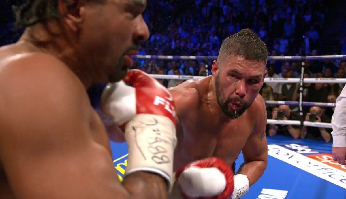 Tony Bellew is serious: I love Tyson Fury, but I'd hit Fury in the face very hard!: Tony… #BoxingNews #BritishBoxing #boxing #allthebelts