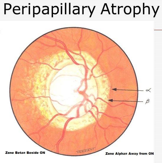How To Distinguish Between Zone Alpha And Beta Peripapillary