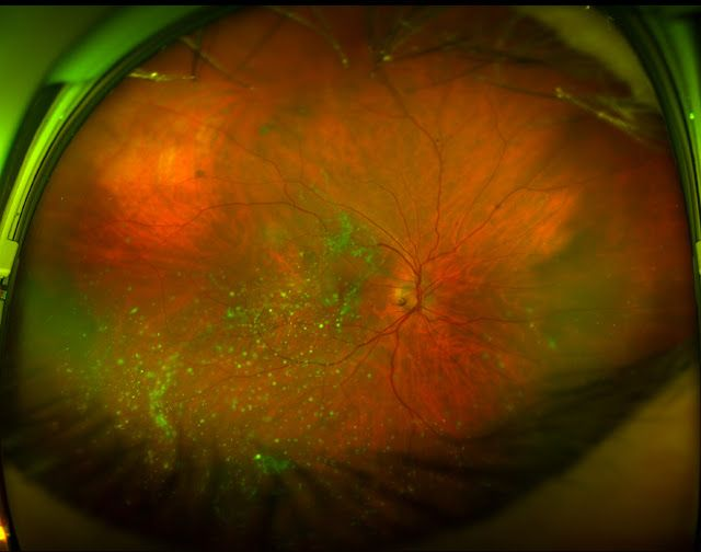 New Website For Sharing Optos Retinal Images By Eyedolatry
