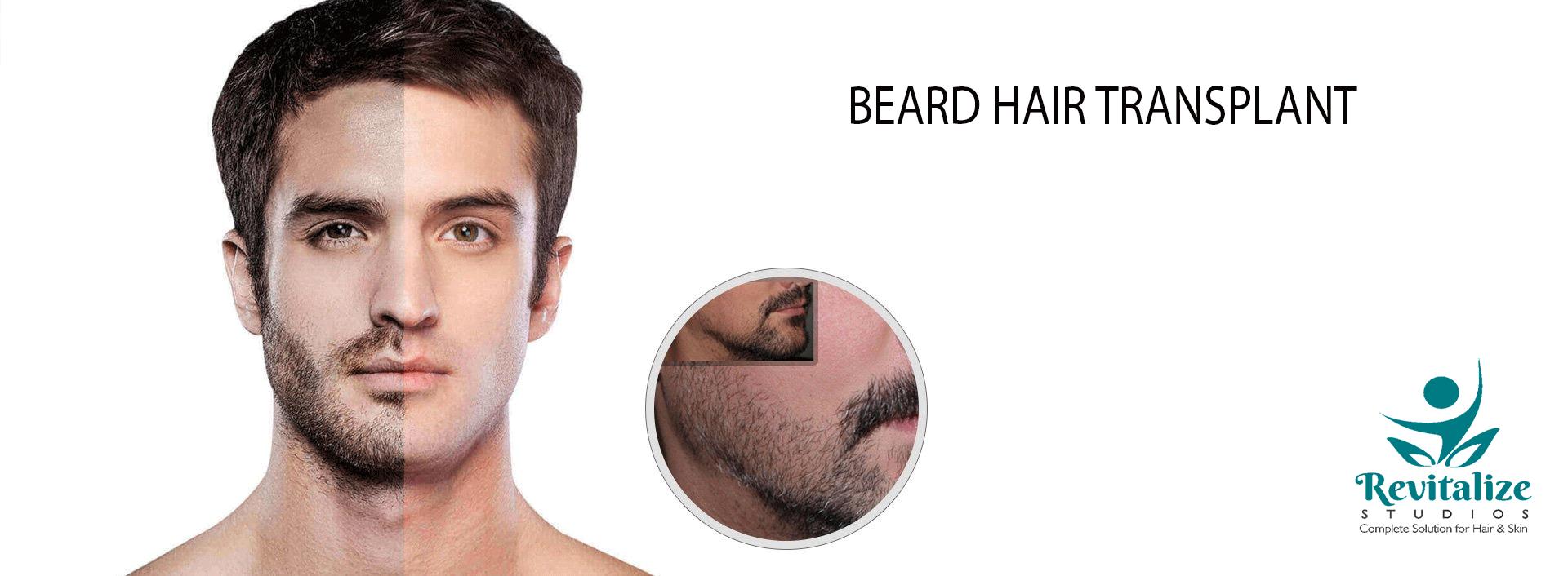 Beard Transplant Beard transplant, Beard, Best hair