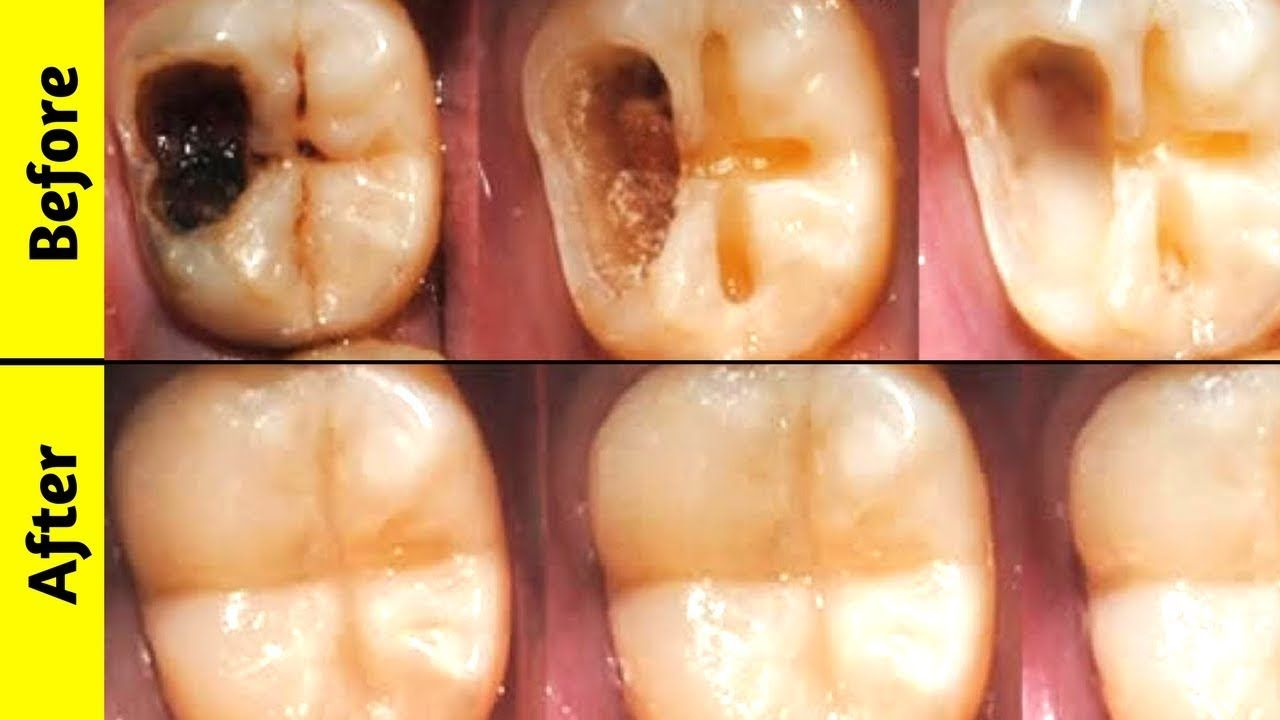 3 Simple Ways To Reverse Cavities Heal Tooth Decay Remineralize Teeth Heal Cavities Heal Cavities Tooth Decay Remedies