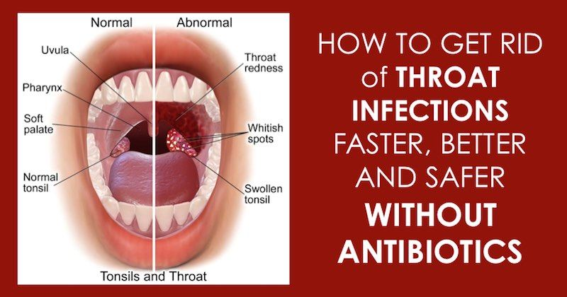 Images - Causes of adult throat infections
