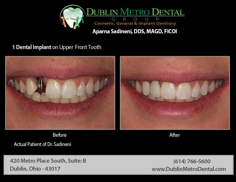 Affordable dental care for your entire family accepting