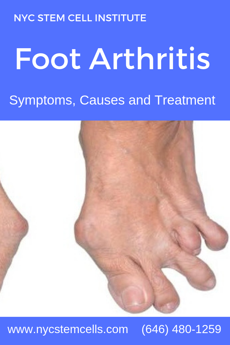 Orthopedic Surgery Natural Remedies For Arthritis Arthritis Arthritis Treatment