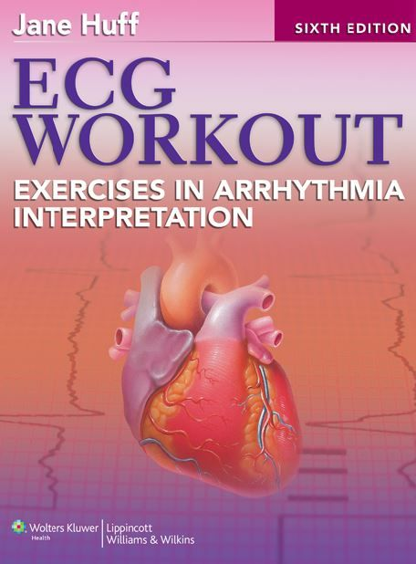 Ecg Workout 6th Edition Pdf Books Workout Exercise Books