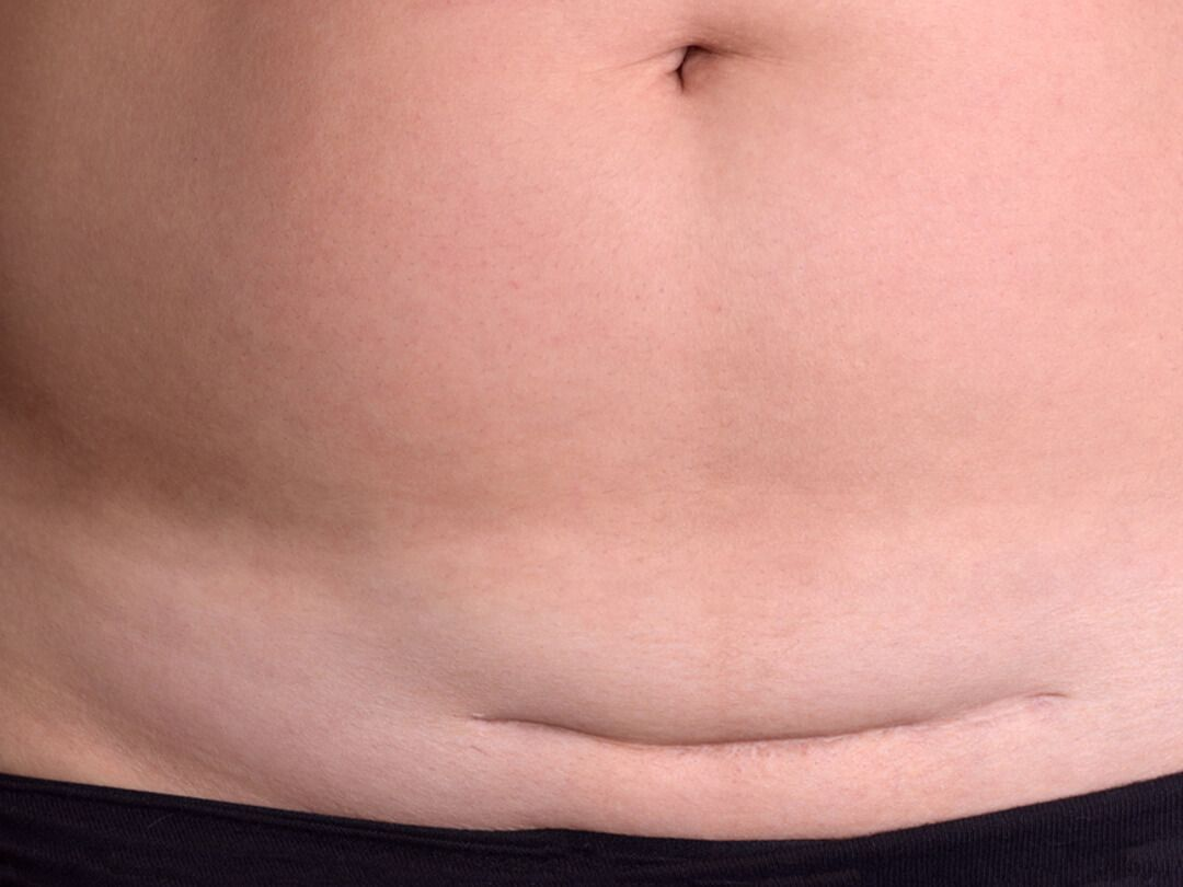 how to get rid of hanging belly fat after c section
