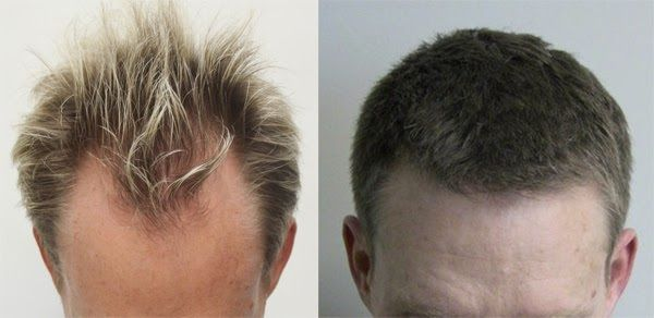 The Retrograde Hair Loss Issue Or Generally Known As Alopecia - Custom vinyl decal application fluidhow to make decal application fluidhair loss surgery