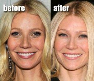 Gwyneth botox | Botox | Cheek implants, Plastic surgery