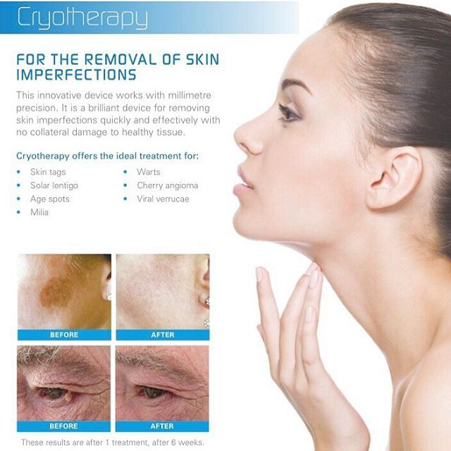 Has The Summer Left Your Skin With Unwanted Patches Of Pigmentation Book Ahead For Cryotherapy To Remove It Treatmen Cryotherapy Sun Spots Removal Treatment
