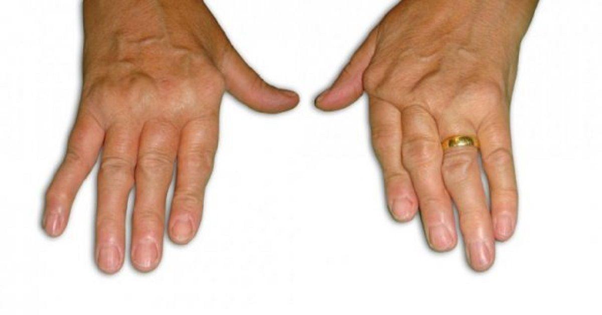 Se sofre de artrite, ou conhece quem sofre, tem de conhecer esta receita completamente natural. A artrite é uma doença inflamatória causada por diversos motivos, entre eles os desgastes nas articulações, trauma, infecções por vírus ou bactéria, entre outros. Os pacientes detectados com esse problema