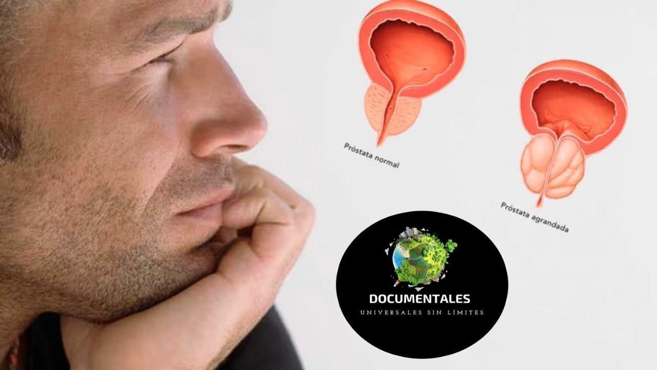 curacion prostata medicina natural