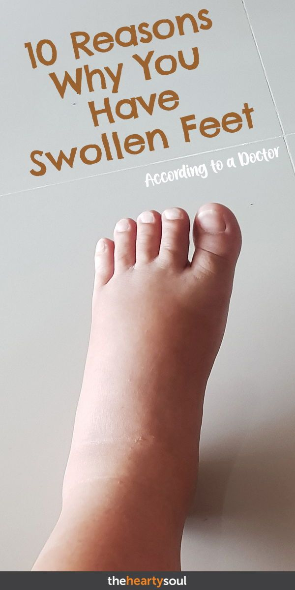 10 Reasons Why You Have Swollen Feet + When To See