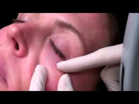 Long pulse 1064nm laser treatment of blue veins around eyes.mp4