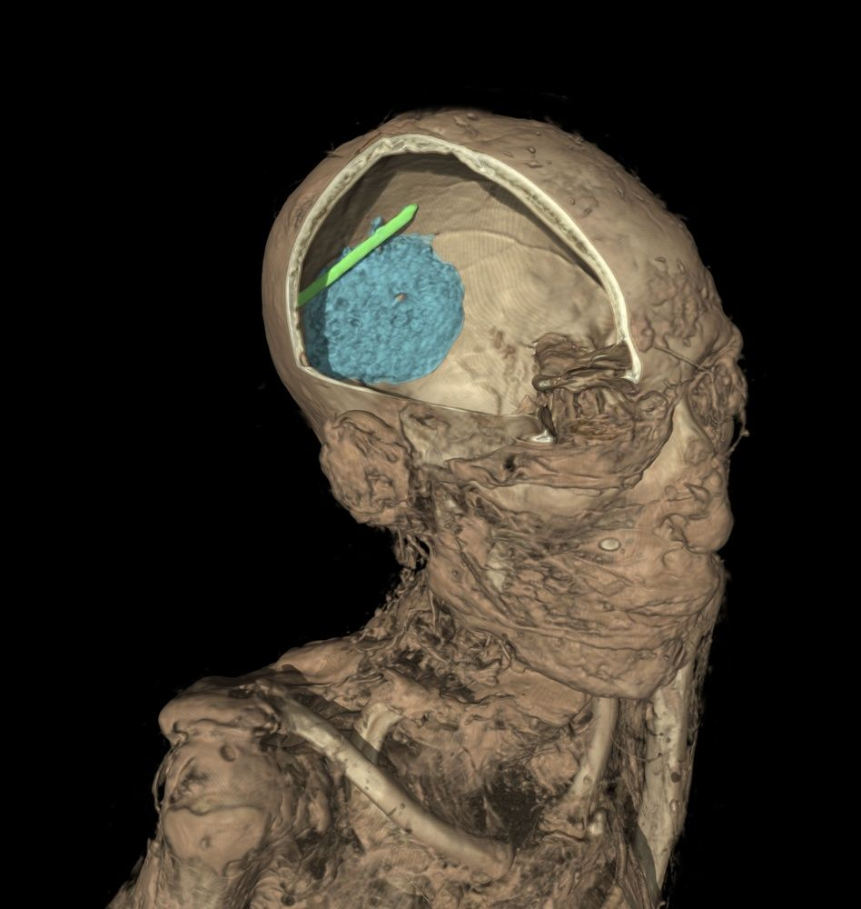the CT scan of the mummy of an adult man. the scan shows the remains of the brain (colored in blue) and evidence of a tool that was left in the skull as a mistake during the mummification process ( in green).