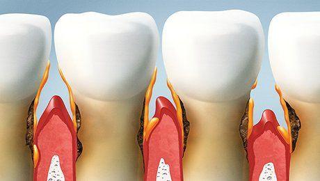Zahnschmelz Ersatz