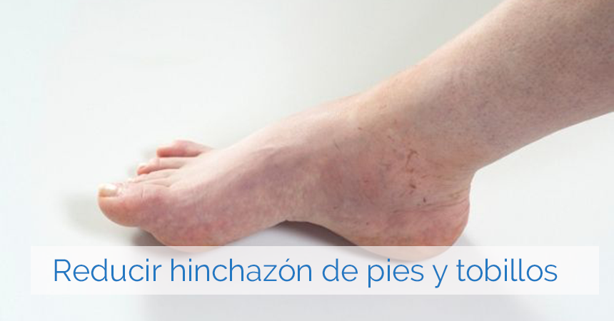Remedios caseros para pies hinchados por mala circulacion