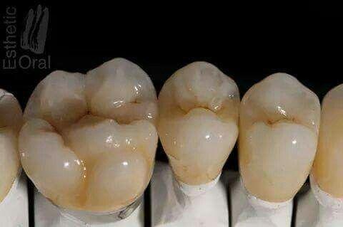 Pin von Juan L H auf dental advanced | Pinterest