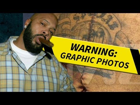 Suge Knight- Check Out These Gruesome Bullet Wounds!