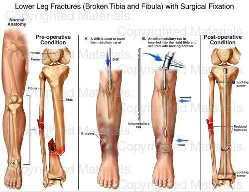 interior tibia and fibula fracture » Full HD MAPS Locations ...