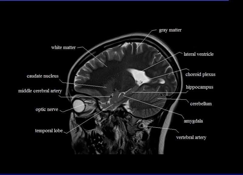Mri Sagittal Cross Sectional Anatomy Of Brain Image 16 Radiology