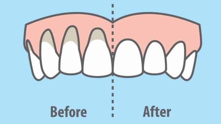 how to stop receding gums naturally