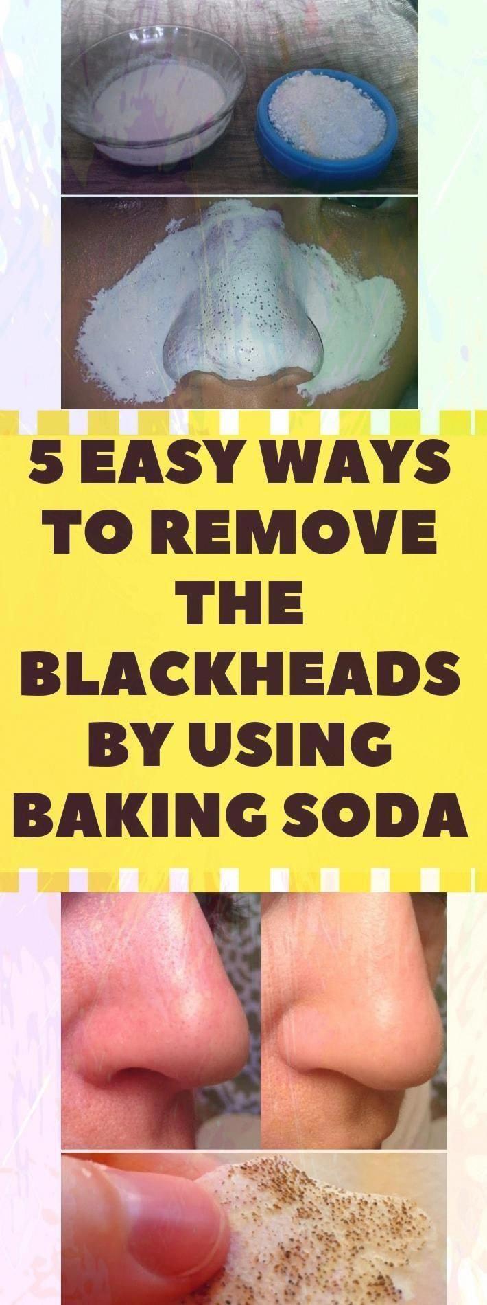 5 Easy Ways to Remove #blackheads With Baking Soda - Ideal Shape Body#health #fitness #healthandfitn...