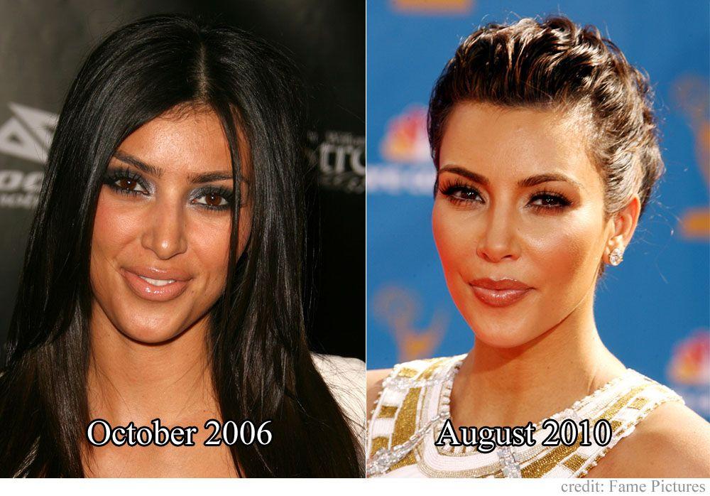 Kim kardashian before and after nose job kim kardashian