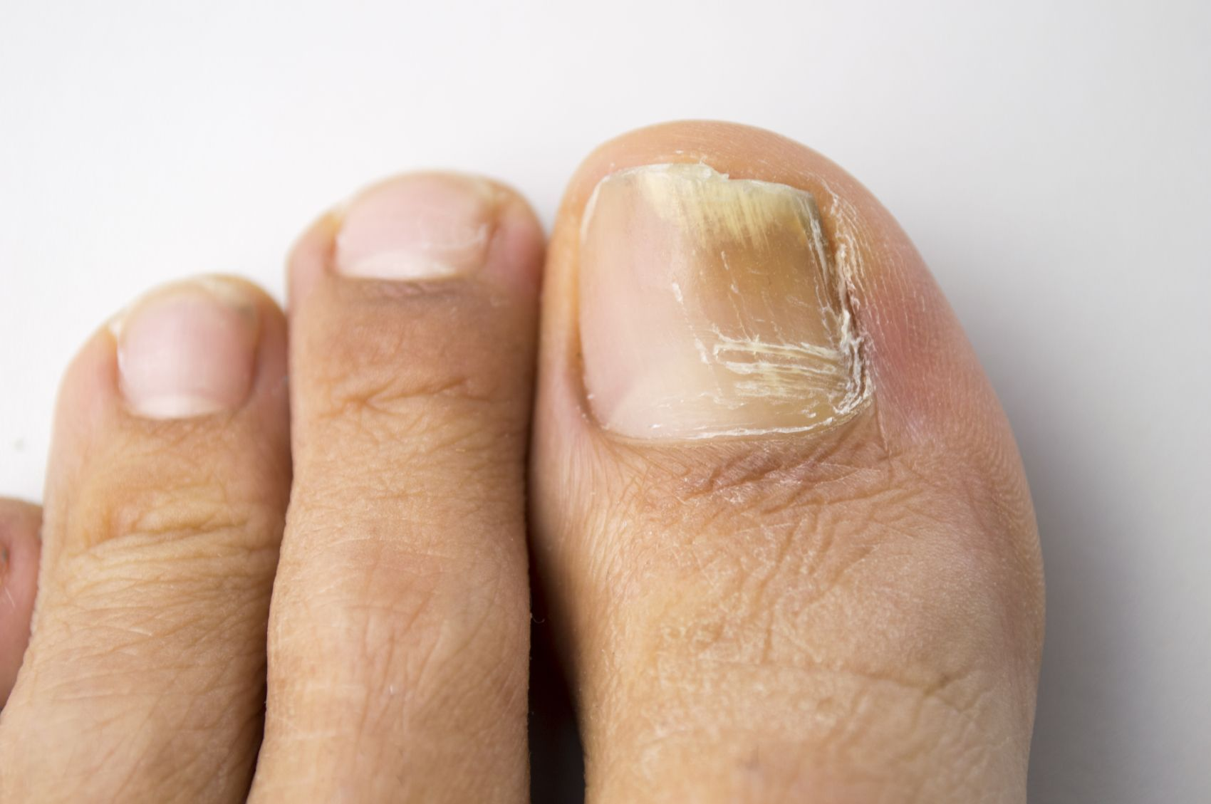 Fight toenail fungus at its source with these six simple toenail